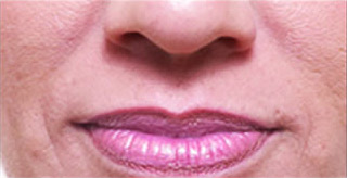 juvederm-1-front-bef_0