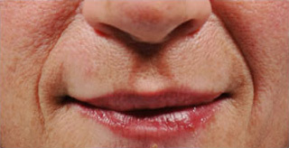 juvederm-2-front-bef_0
