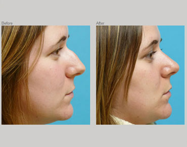 rhinoplasty-patient2