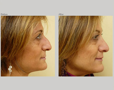 rhinoplasty-patient3