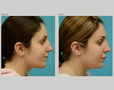 rhinoplasty-patient4